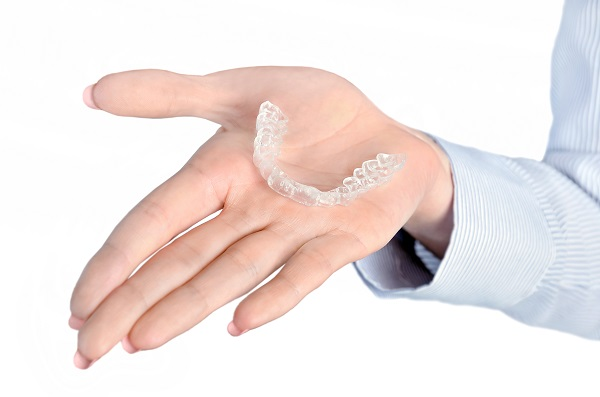 FAQs About Clear Aligners [Teeth Straightening]