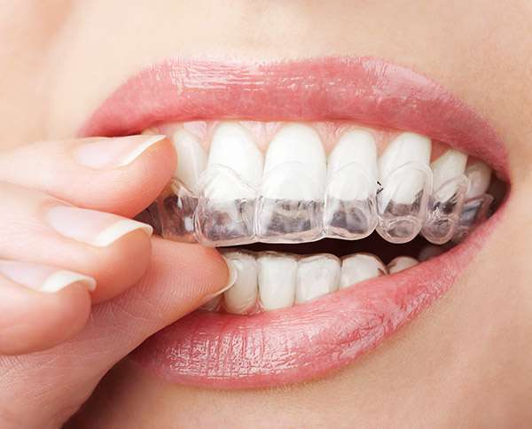How Early Orthodontic Treatment Can Help You Avoid Bigger Issues