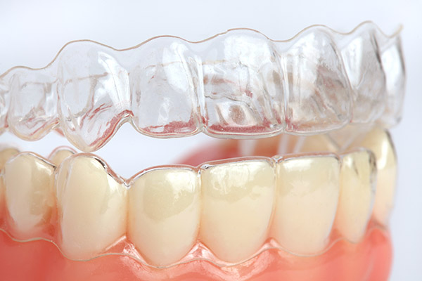 How Do Clear Aligners Work?